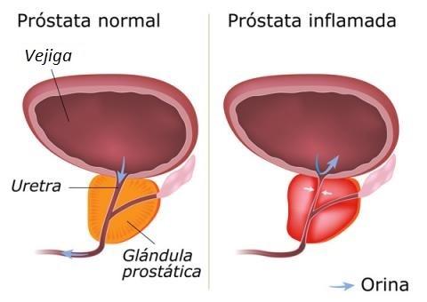 Prostatitis férfiakban és vérben a vizeletben prostatitis mert az emberekből származik